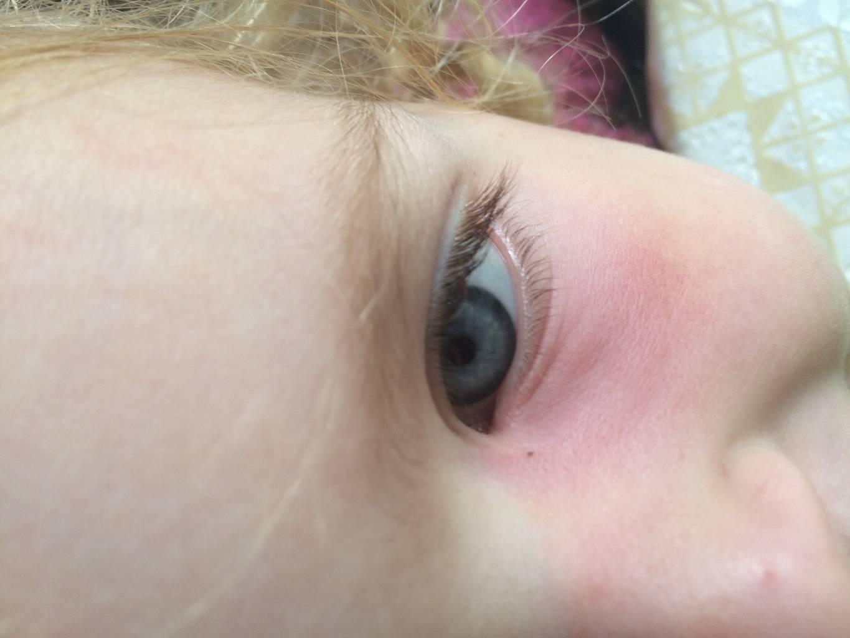 Отек верхнего века одного глаза у ребенка причины и лечение
