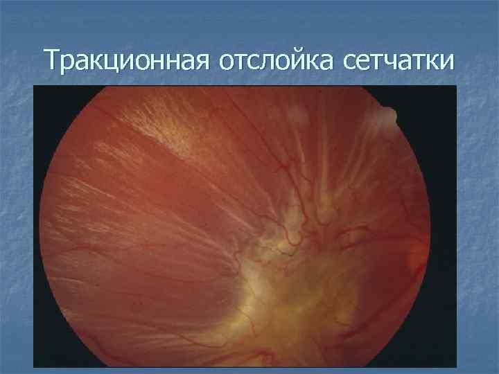 Ранние признаки и симптомы отслоения сетчатки глаза