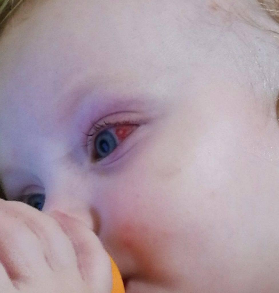 Красный глаз у грудничка - с чем может быть связано состояние, действия родителей