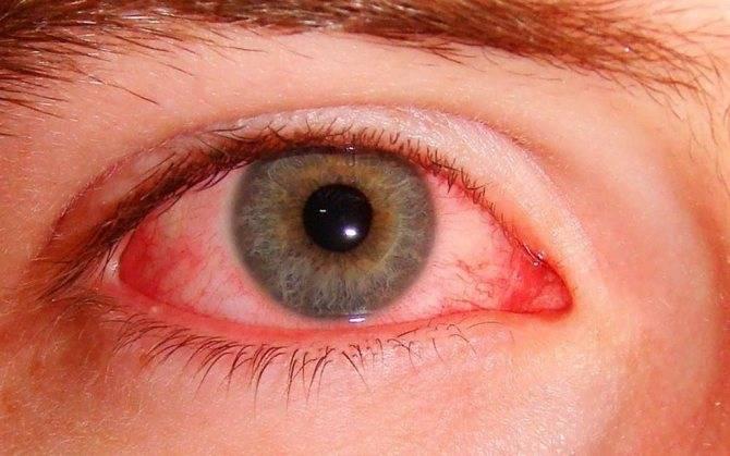 Глазной грипп - симптомы, фото, причины и лечение
