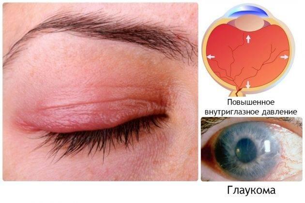 Офтальмогипертензия - для врачей