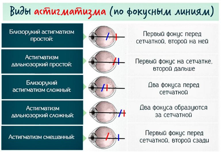 Что такое гиперметропический (дальнозоркий) астигматизм и можно ли его вылечить?