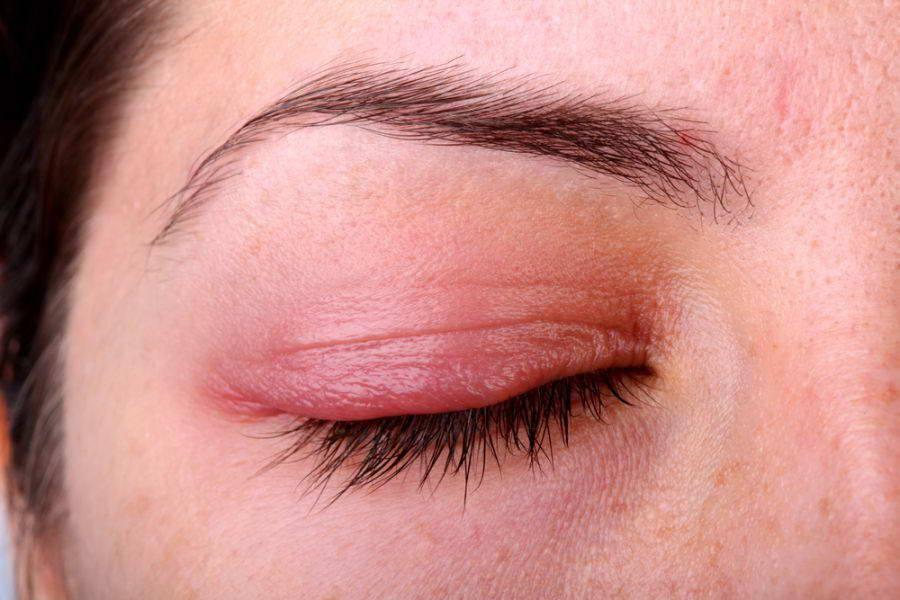 Опухло верхнее веко глаза, что делать: причины отёка над одним глазом, фото, лечение