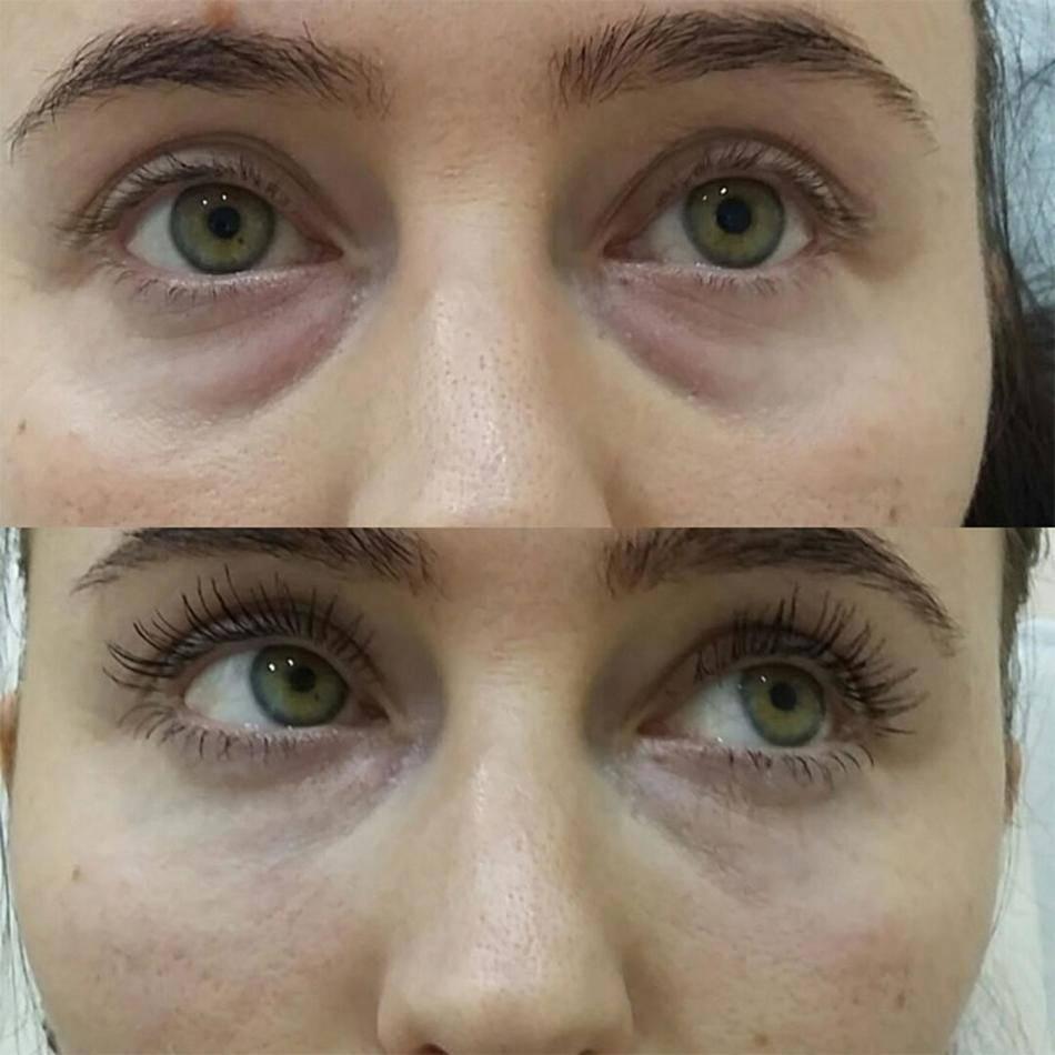 Мезотерапия вокруг глаз: отзывы, фото до и после, чем опасна