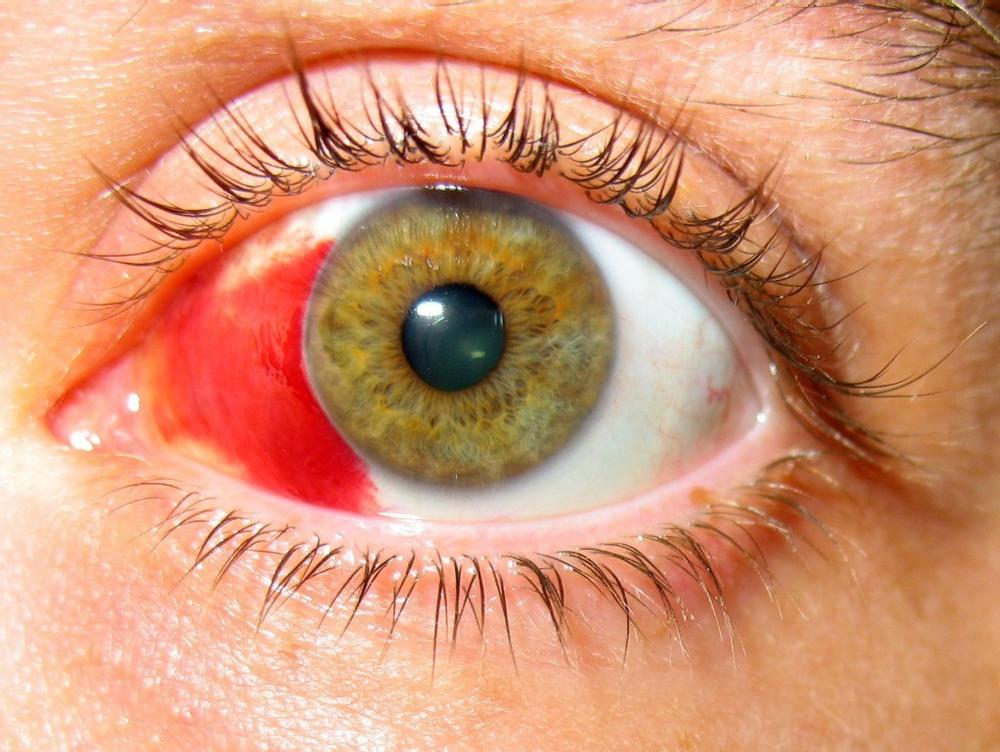 Что делать, если лопнул капилляр в глазу?