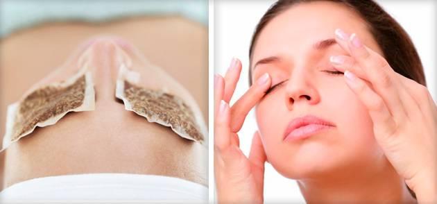 Компресс из ромашки для глаз. ромашка для лица — полезные свойства и применение отваров, льда, настойки, кремов с экстрактом и масок