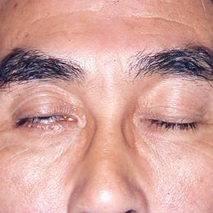 Лагофтальм - симптомы болезни, профилактика и лечение лагофтальма, причины заболевания и его диагностика на eurolab
