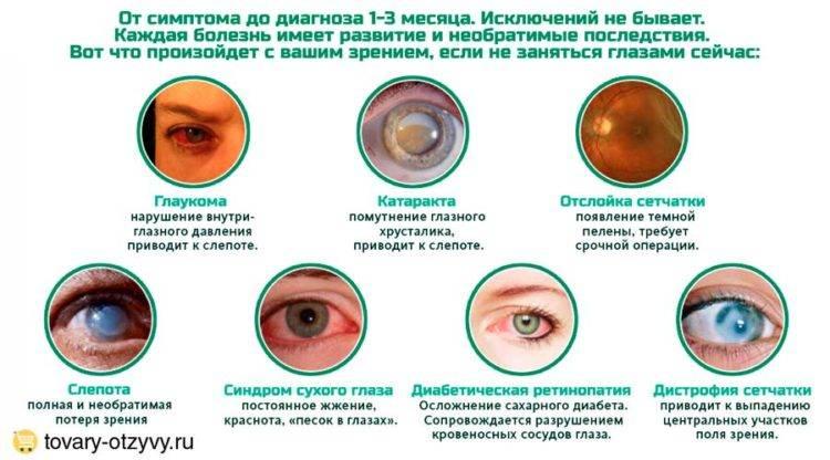 """Ощущение """"песка в глазах"""": причины, симптомы и методы лечения - здоровое око"""