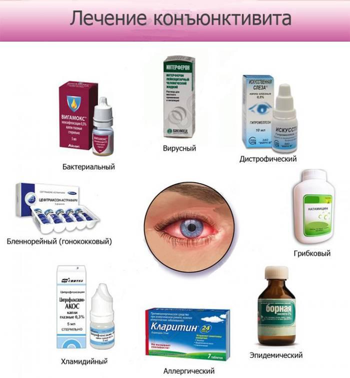 Особенности лечения разных видов вирусного конъюнктивита