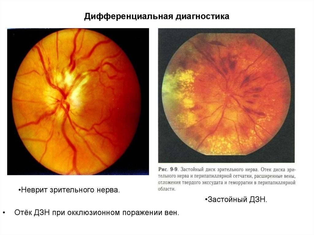 Атрофия зрительного нерва | симптомы и лечение атрофии зрительного нерва | компетентно о здоровье на ilive