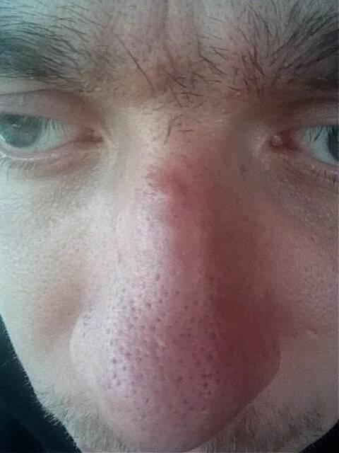 Фурункул у ребенка (22 фото): причины и лечение чирея на ягодицах, ноге и руке, гнойник в носу у новорожденных и грудничков