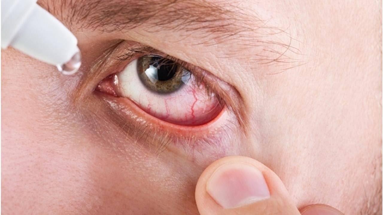 Вирусный конъюнктивит: виды, симптомы и лечение