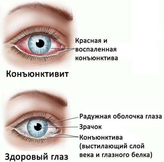 Чем лечить если гноятся глаза у взрослого: препараты, капли и мази