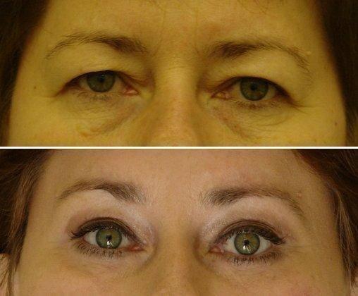 Уход за глазами после блефаропластики (пластики век): восстановление и заживление, рекомендации