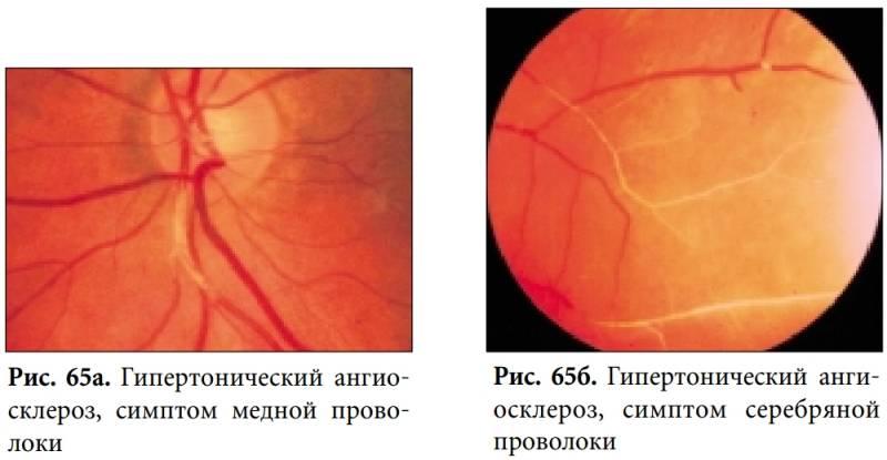 Всё о гипертоническом ангиосклерозе сетчатки глаза: методы диагностики, симптомы и другие нюансы заболевания