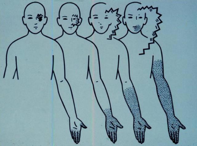 Мерцательная скотома (офтальмологическая мигрень)