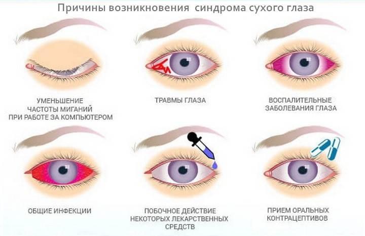 Синдром сухого глаза: симптомы, виды лечения и профилактика