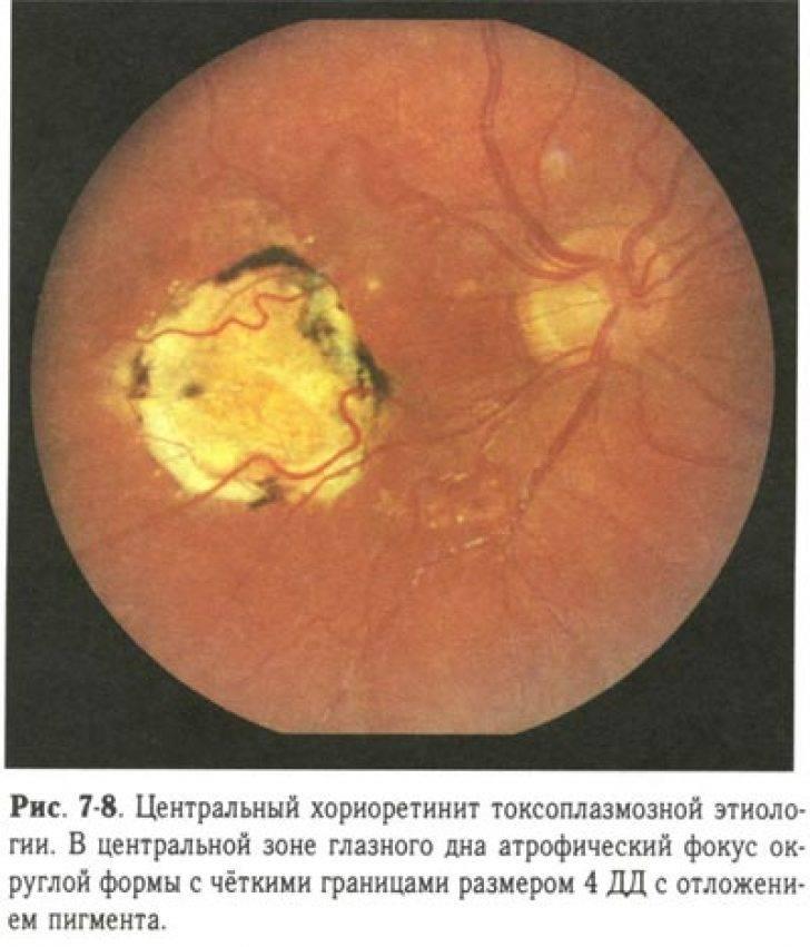 Хориоретинит глаза – причины, симптомы и лечение заболевания