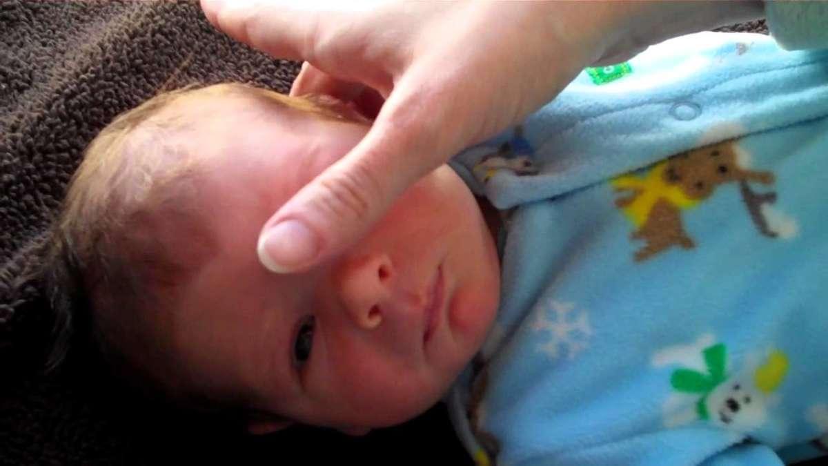 Зондирование слезного канала у новорожденных и детей до года: видео, последствия, отзывы, как делают