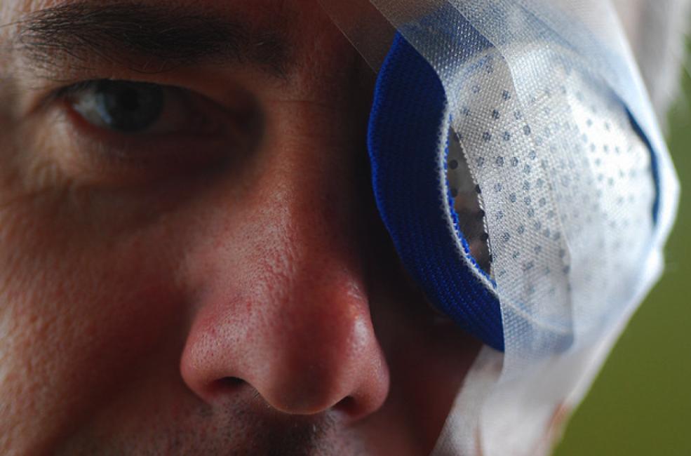 Сколько длится реабилитация после замены хрусталика глаза?