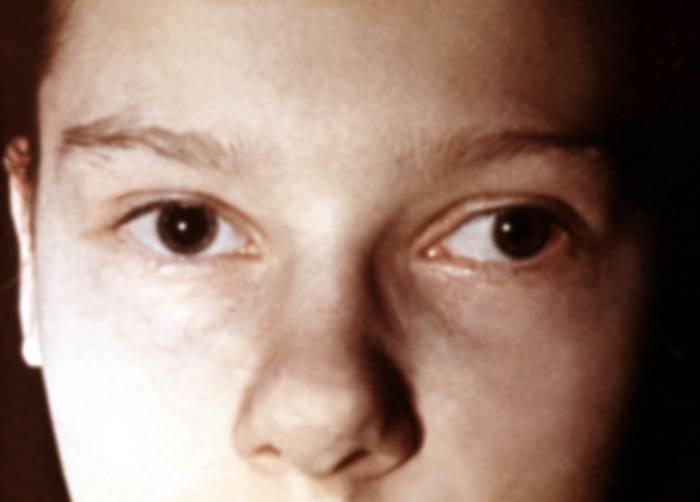Монолатеральное косоглазие: причины и методы коррекции заболевания — глаза эксперт