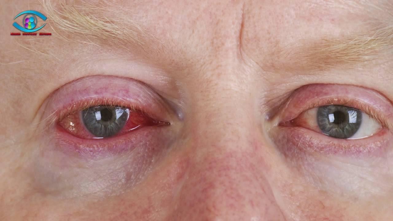 Глаз покраснел, слезится и болит: возможные причины, лечение oculistic.ru глаз покраснел, слезится и болит: возможные причины, лечение