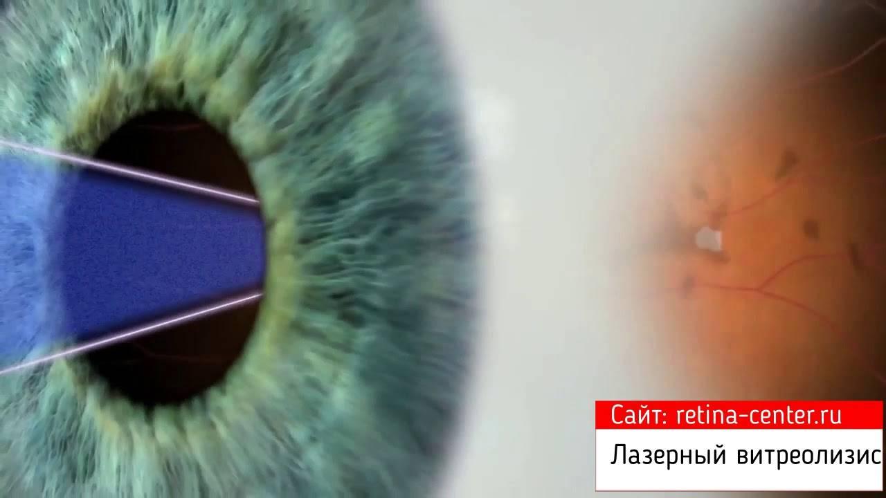 Витреолизис лазерное удаление мушек в глазах отзывы последствия цена