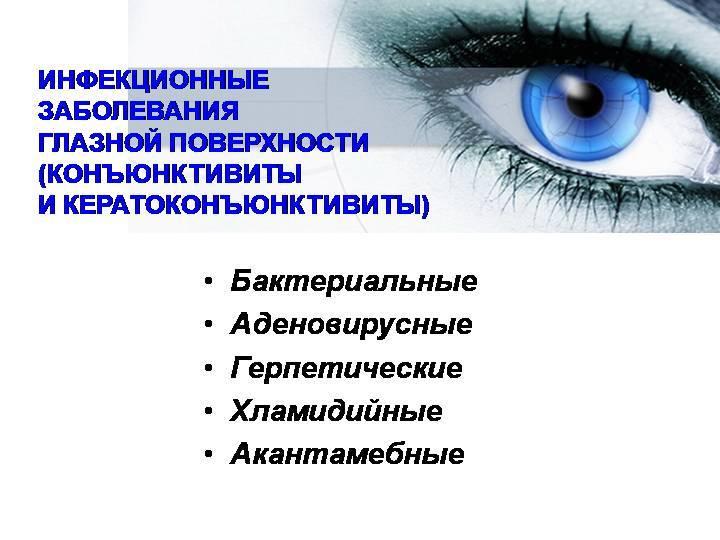 Инфекционные заболевания глаз
