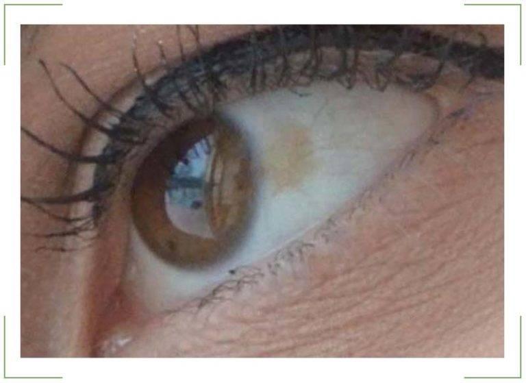 Пятно на глазу (точка) – виды и причины. белое пятно на глазу у человека.