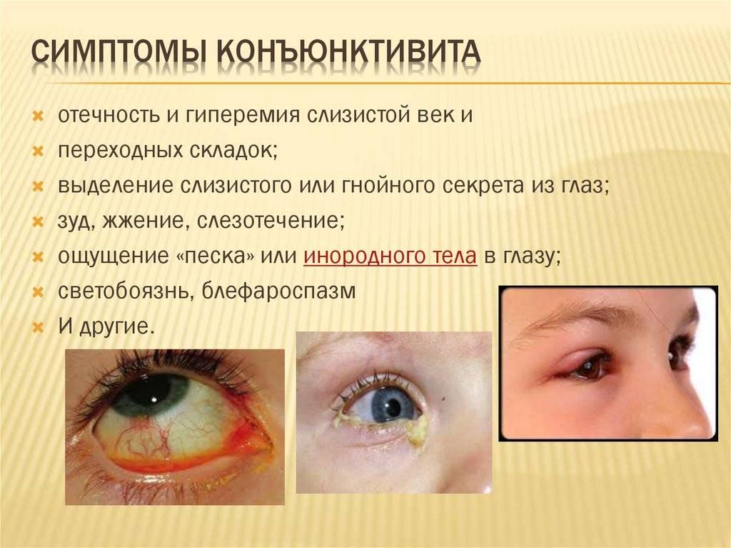 Гнойный конъюнктивит у ребенка: лечение по комаровскому, капли и сколько длится?