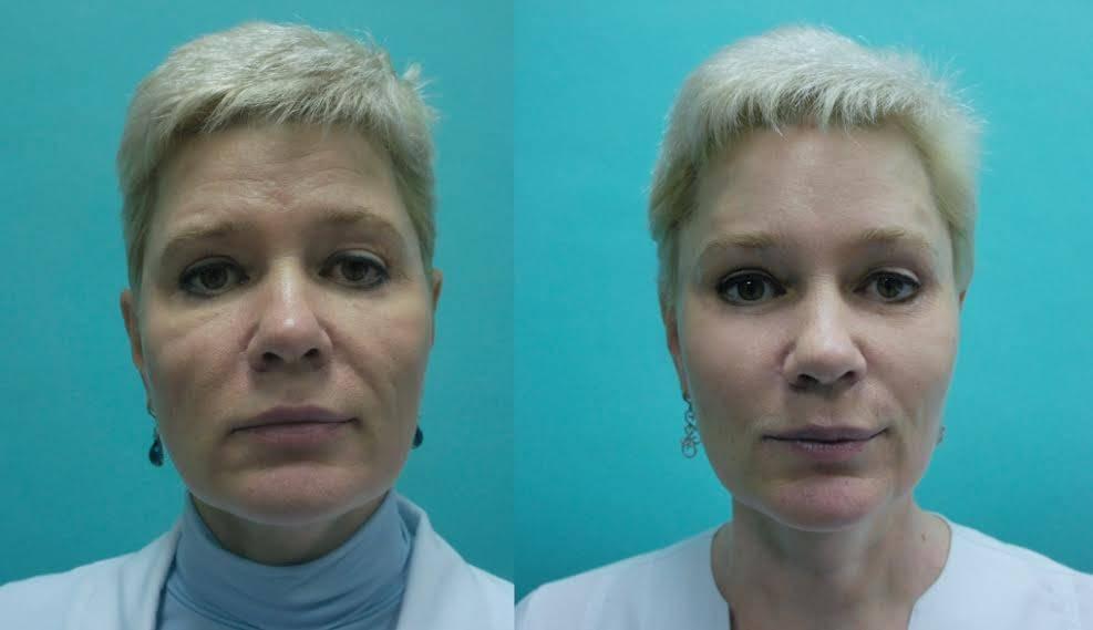 Грыжи под глазами: виды, как убрать, разные способы лечения без операций и профилактика