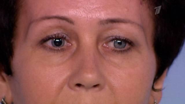 Синдром горнера - что это, причины, симптомы, лечение, последствия