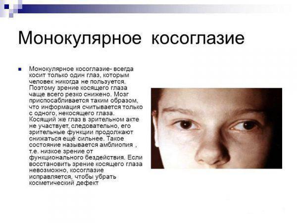 Монокулярное зрение: как выявить?