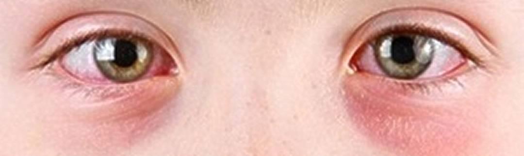 Круги вокруг глаз красные причины. причины возникновения красных пятен или кругов под глазами у взрослых   школа красоты