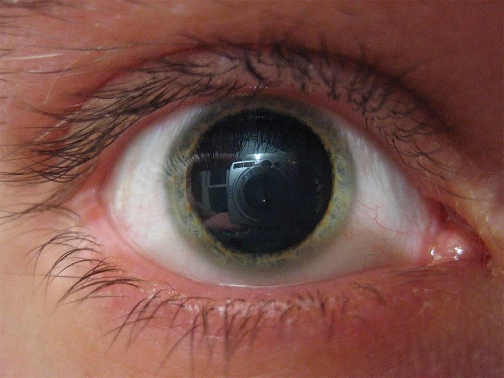 Свежий взгляд: как быстро убрать покраснение глаз вдомашних условиях