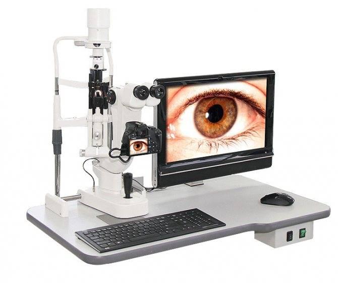 Как проверяют сетчатку глаза