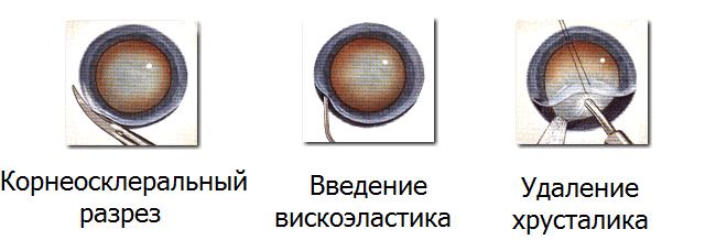 Экстракапсулярная экстракция катаракты (ээк): операция, отзывы, клиники, цены
