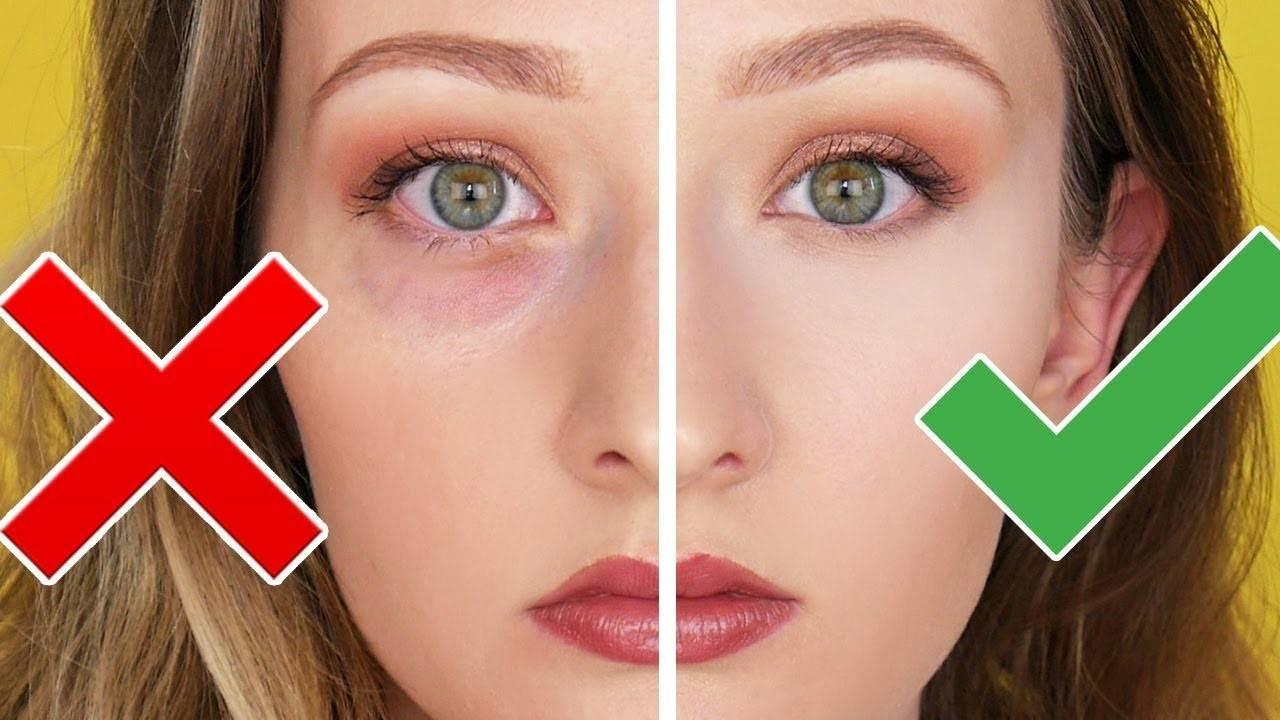Темные круги и синяки под глазами: причины их появления у женщин, мужчин и подростков