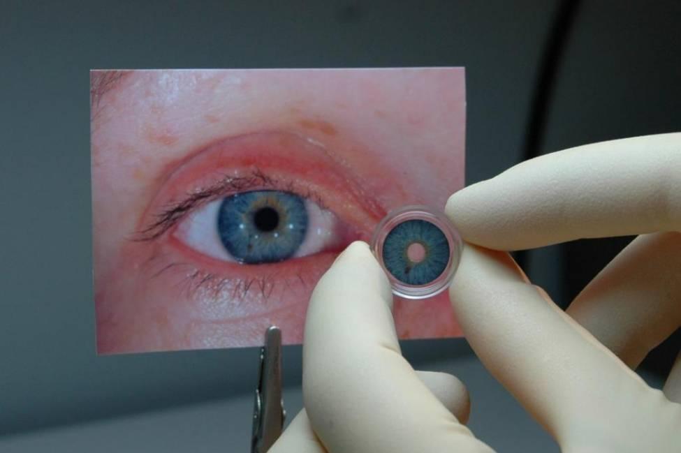 Что такое аниридия глаза. диагностика, лечение и профилактика аниридии.