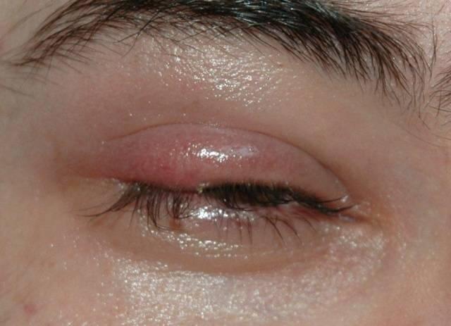 Удаление кисты на глазу - причины появления, лечение кисты глаза | клиника санта