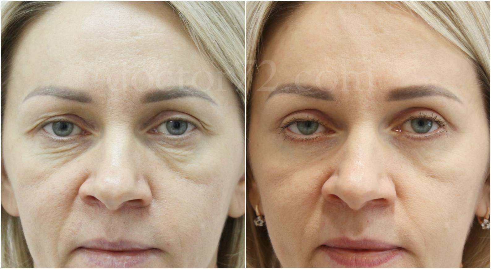 Малярные мешки под глазами: как устранить, косметические и хирургические методы