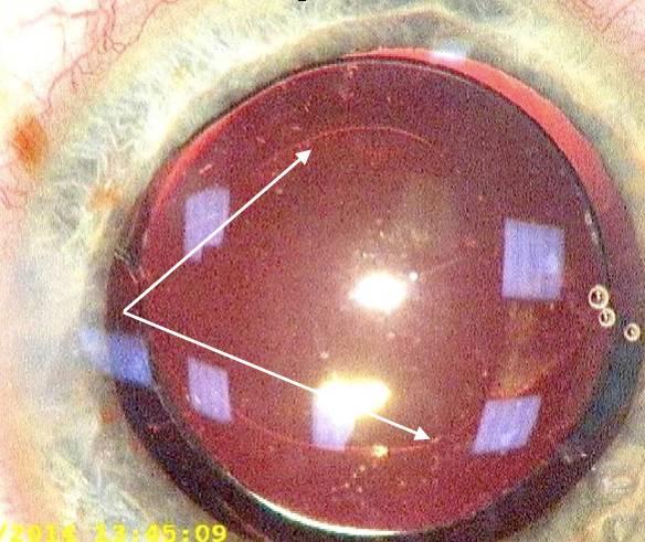 Причины возникновения вторичной катаракты — симптомы и лечение лазером