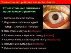Ушиб глазного яблока первая помощь последствия лечение - мед портал tvoiamedkarta.ru