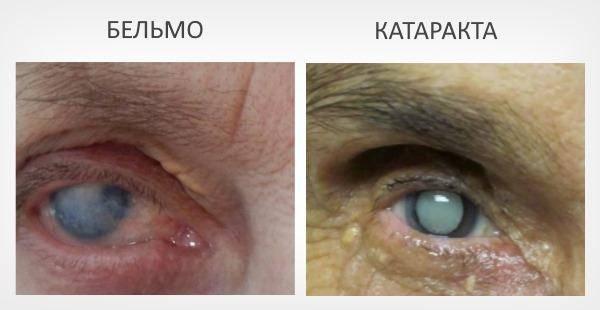 Бельмо или лейкома — что это такое?