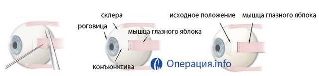 Хирургическое исправление косоглазия: цена в москве