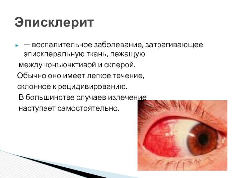 Эписклерит: симптомы и лечение у детей и взрослых, препараты, причины, что это такое, виды (узелковый, мигрирующий), диагностика, профилактика