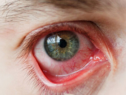 """Эписклерит глаз: причины, симптомы и эффективные методы лечения заболевания - moscoweyes.ru - сайт офтальмологического центра """"мгк-диагностик"""""""