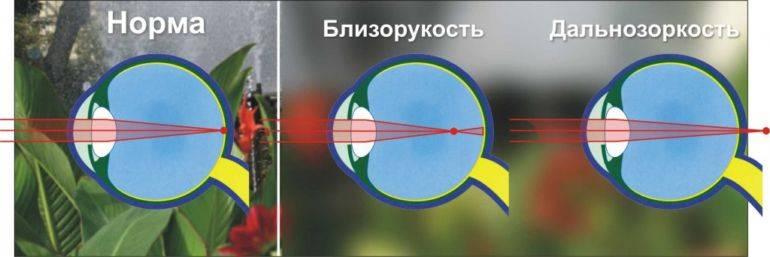 Физкультура и спорт при нарушениях зрения: обзор законов