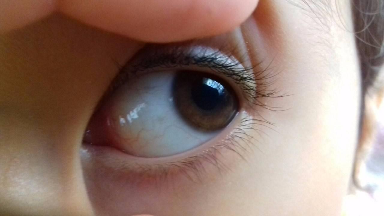 Причины красных белков глаз у ребенка и способы избавления от этого симптома