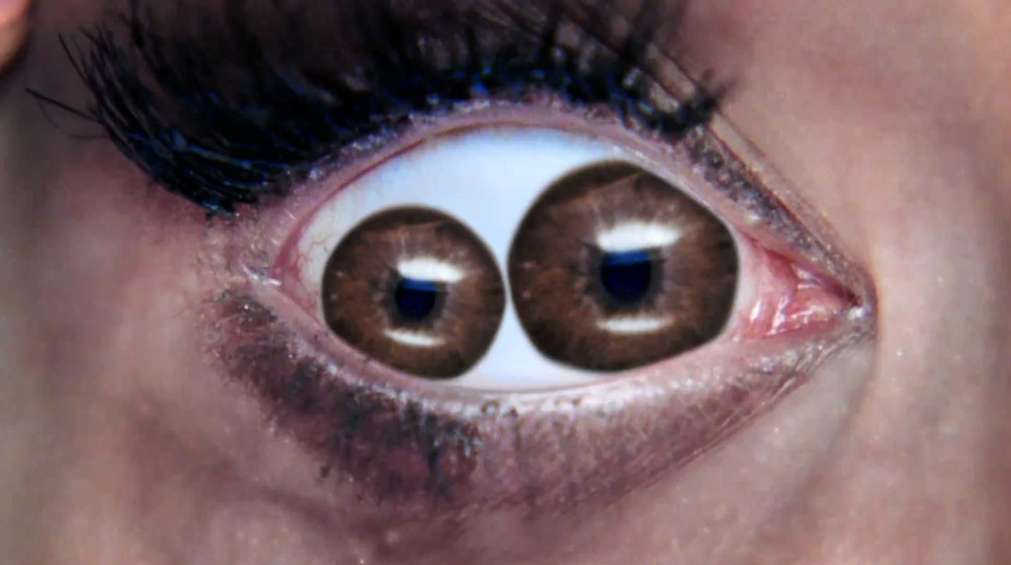 Двойной зрачок — миф или генетическая аномалия?